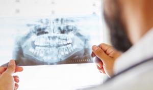 maxillofacial surgery